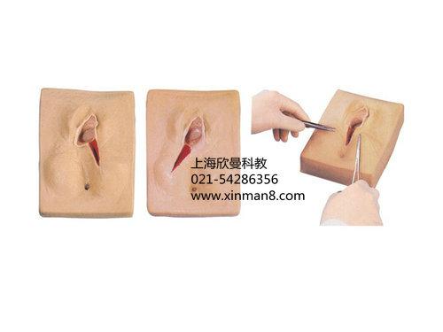 侧切伤口怎样缝合图解