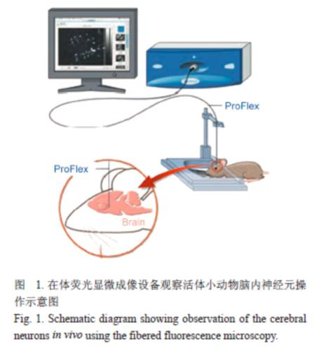 随后对大鼠脑组织行冰冻切片,荧光显微镜对切片的观察结果验证了在体