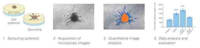 导言 近几年来,3D(three dimensional)细胞培养系统开始成为生物学研究新的研究方法。使用3D系统培养系统能更好的模拟生物体内的真实生理环境,而2D(传统的贴壁培养)细胞培养系统不能有效的模拟细胞在生物体内的生理环境。3D细胞技术有很多种方法,使用多细胞形成的细胞团是其中主要的研究应用之一。细胞团是微小的细胞聚集簇,可以用来研究3D情况下向外生长的情况(细胞出芽)。 一.