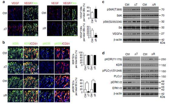 成骨细胞分泌血管生成抑制因子cxcl9