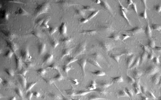 大鼠心脏成纤维细胞